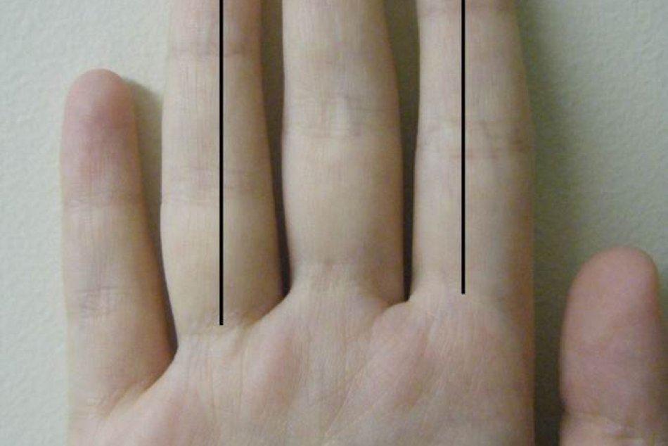 Veľa dokazuje dĺžka druhého prstu